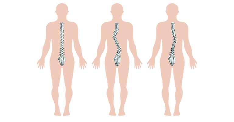 Cong vẹo cột sống cũng là một trong những nguyên nhân gây đau lưng sau vùng phổi phải trái